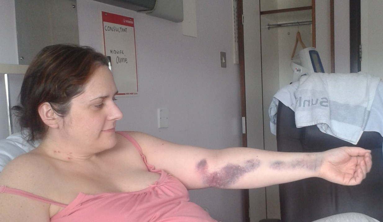Some of my beautiful bruises.