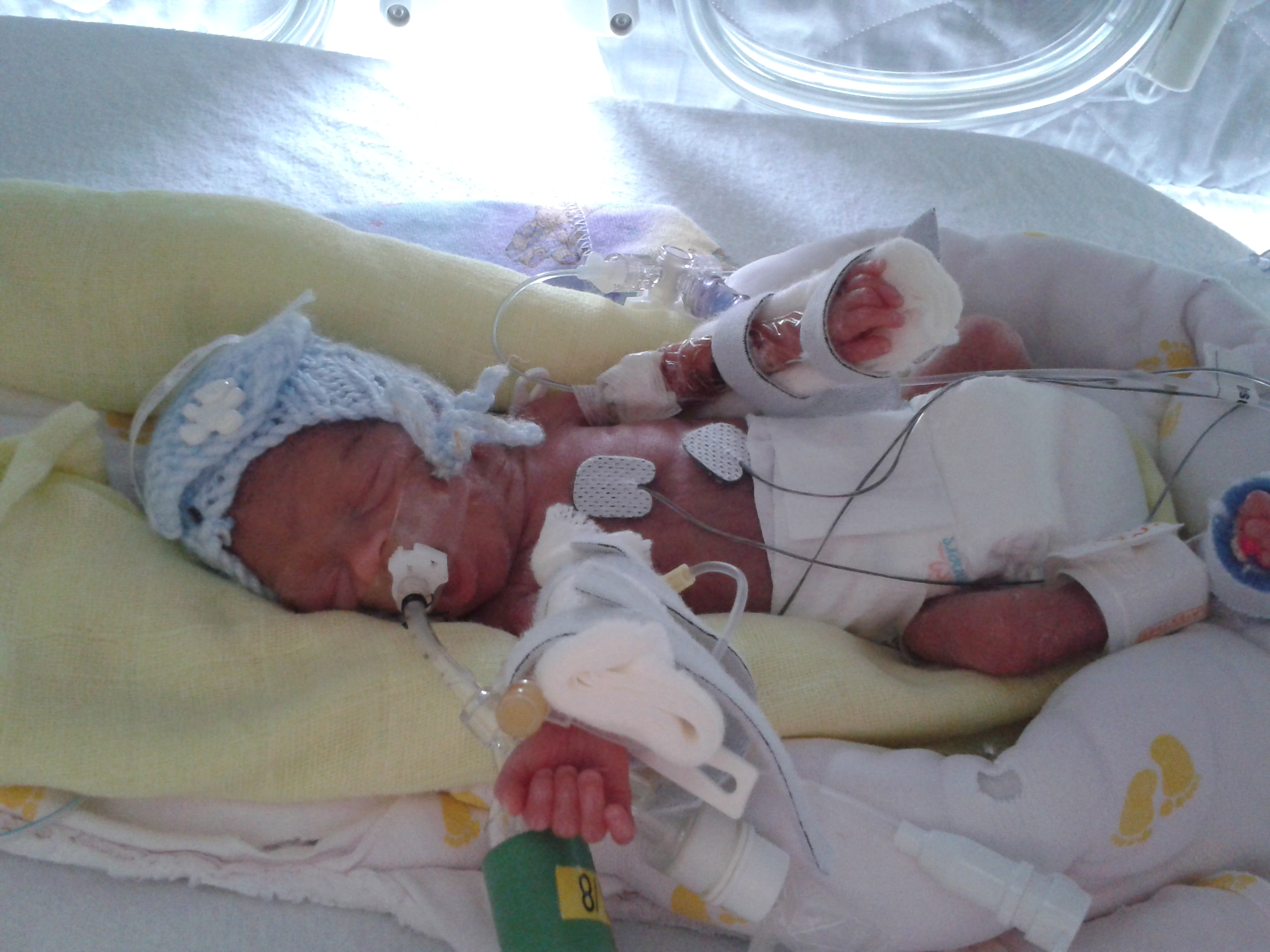 What To Put In Room With Premature Baby